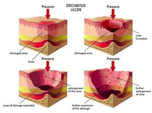 elderly skin ulcers picture 7