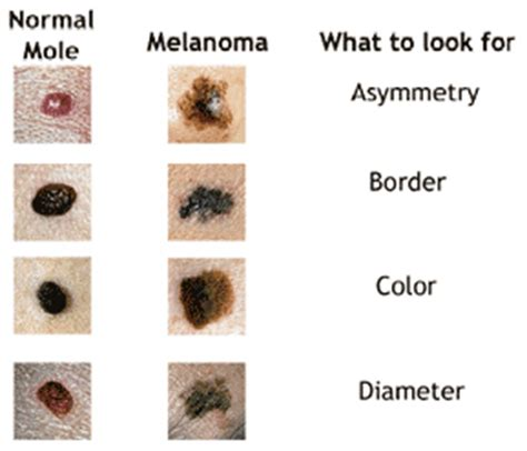 acbd diagnose skin mole picture 5