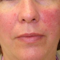 flaky skin and rosacea picture 14