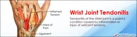 home remidies for wrist joint problem picture 2