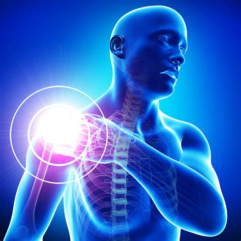 shoulder pain picture 1