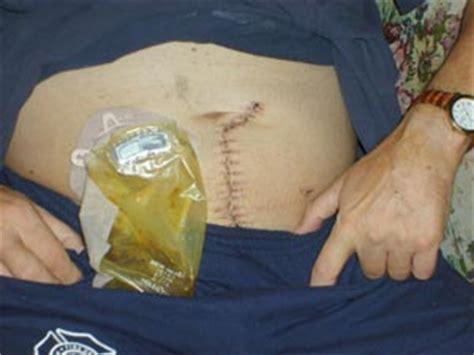 colon surgery proceedure picture 17