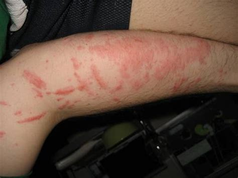 can you get hives from inhaling fumes picture 3