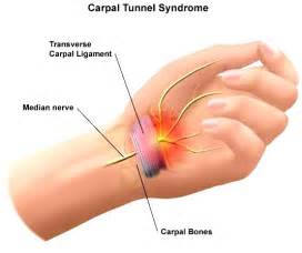 can tarcel tunnel syndrome give u pain in picture 6