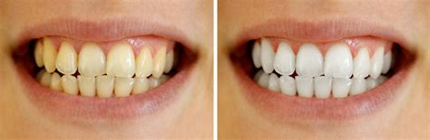 aight white healthy teeth picture 3