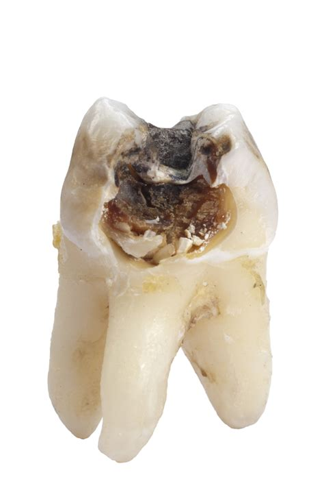 cavities in wisdom teeth picture 15