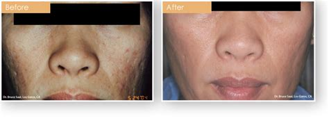acne treatment bay area picture 10