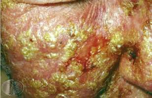 doctors for genital warts picture 2