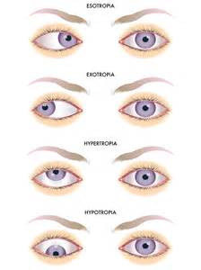 double vision, strabismus surgery picture 5