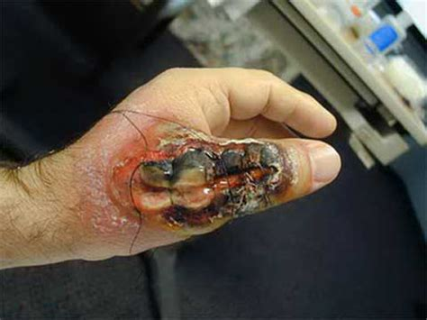 how to get rid of vampire fungus picture 11