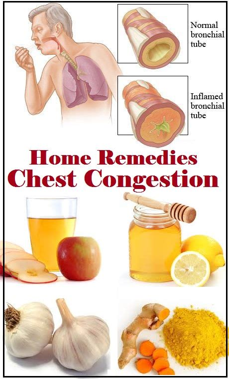 herbal congestion remedy picture 5