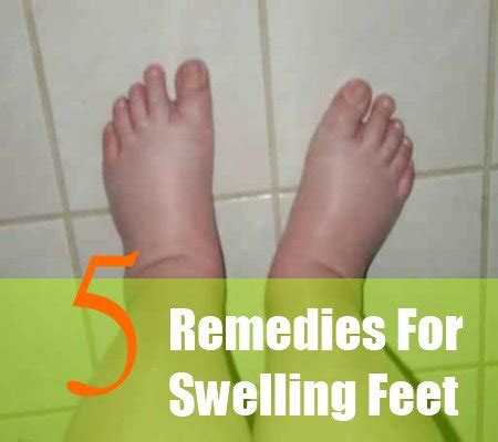 can foot fungus cause swollen nodes in legs? picture 9
