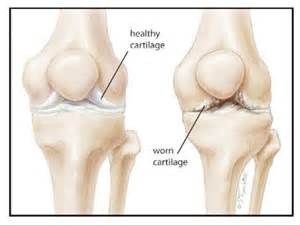knee joint degeneration picture 2
