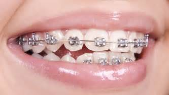 braces teeth picture 3