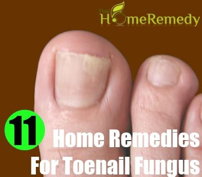 home remedy for toe nail fungus picture 8