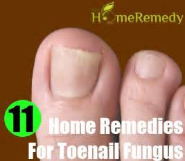 home remeby for toenail fungus picture 5
