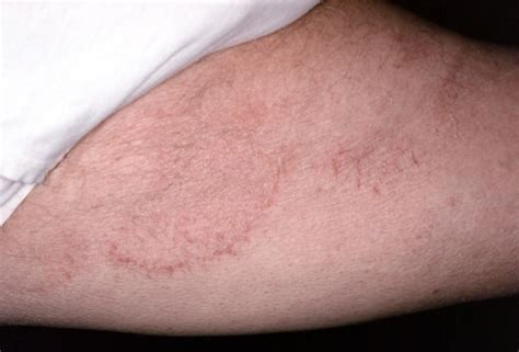 dark skin discolorations on upper thighs picture 5