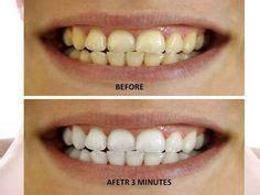 white overnight teeth whitener picture 10