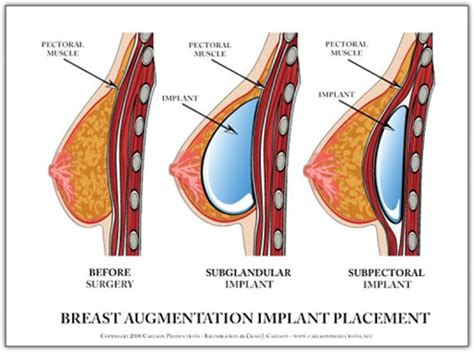 breast augmentation over muscle picture 1
