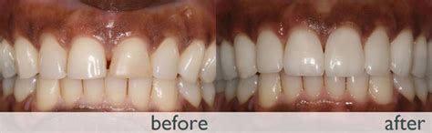 fix gap in teeth picture 10