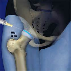 steroid injection into hip joint picture 14