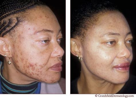 hydroquinone and yeast infections picture 17