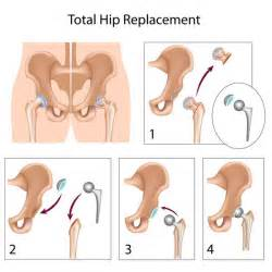 exercises for hip joint tharapy picture 6