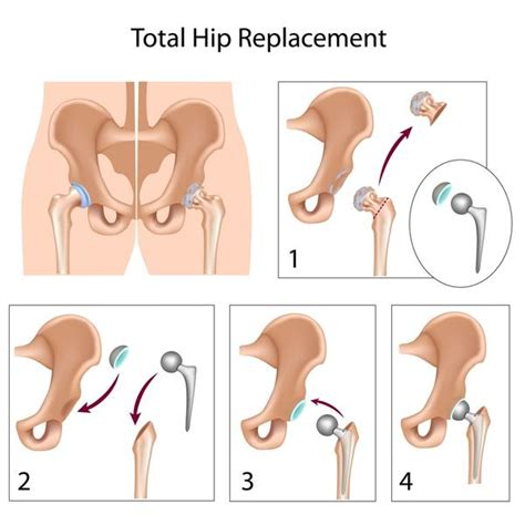 treatment for early arthritis of the knee joint picture 8