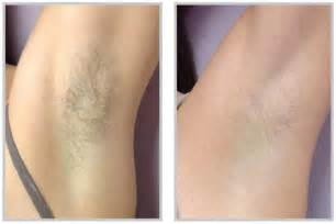 hair removal raleigh picture 3