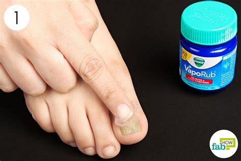 fungus on the toe nails picture 5
