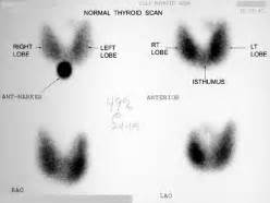 images of scanned thyroid results picture 5