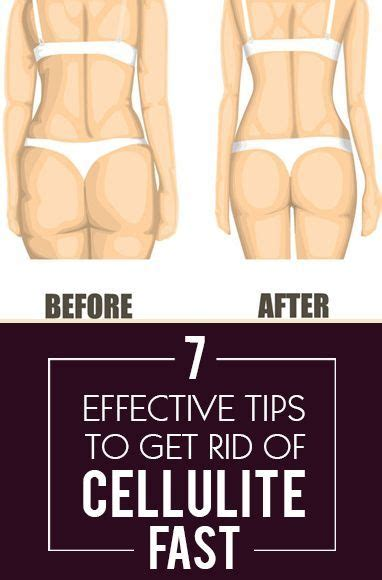 mage get rid of cellulite picture 9