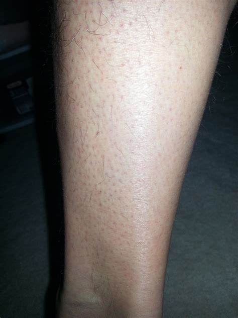 clogged hair follicles on legs picture 2