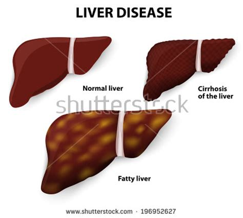 fatty cirrhosis of the liver picture 3