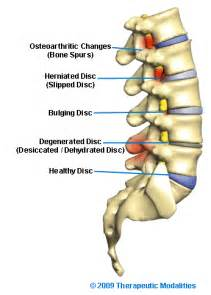 degenrative joint diease in the spine picture 2