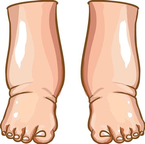 can foot fungus cause swollen nodes in legs? picture 3
