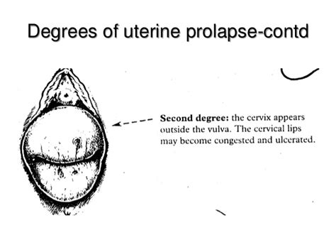 diagram of a bladder prolapse picture 11