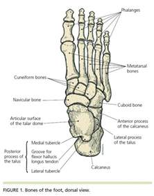 charcot-marie joint picture 7