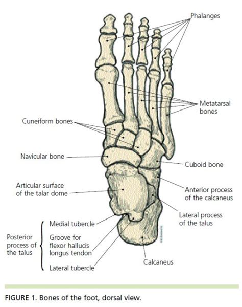 charcot joint picture 13