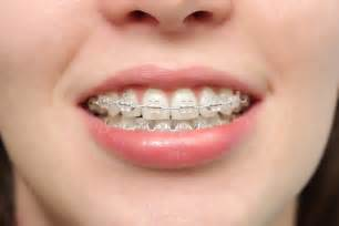 clear teeth brace picture 2