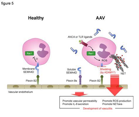 what autoimmune disease causes high neutrophils picture 7
