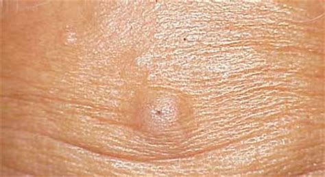 pilar cyst home remedy picture 9