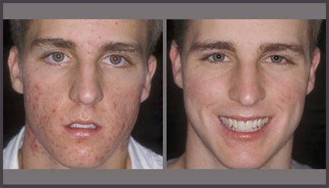 treating acne as a transgender man picture 4