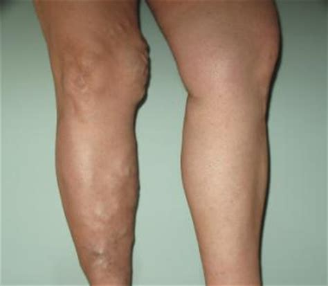 Swelling herbal healing picture 15