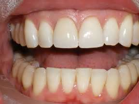 crowns or caps for front teeth that have picture 9