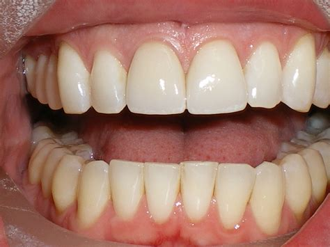 fronts and for teeth picture 6