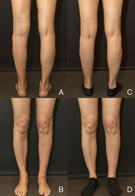 fat transfer to legs picture 5