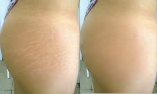 before and after burning stretch marks picture 2