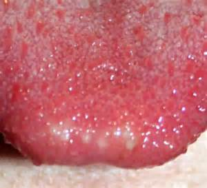 white dots tongue from herpes simplex picture 5