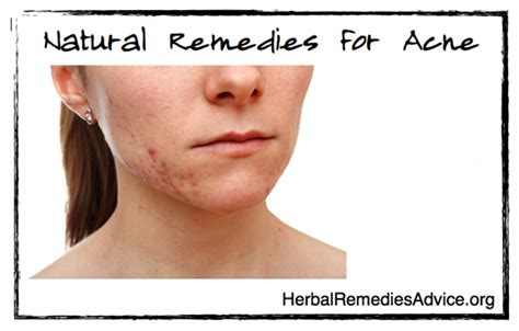 western medicine for acne picture 7